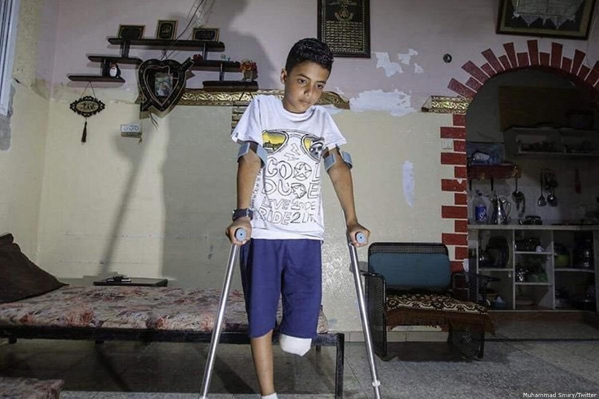 """70066 - """"Niño palestino que perdió una pierna por un disparo israelí mientras jugaba fútbol, aprendió nuevamente a caminar"""""""
