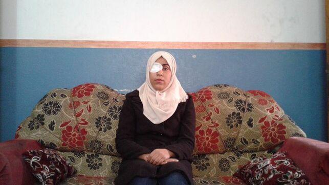Gaza: Perder un ojo por defender un sueño