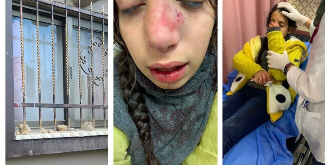 Hoy en Nablus: Colonos israelíes hieren a una niña de 11 años e intentan secuestrarla